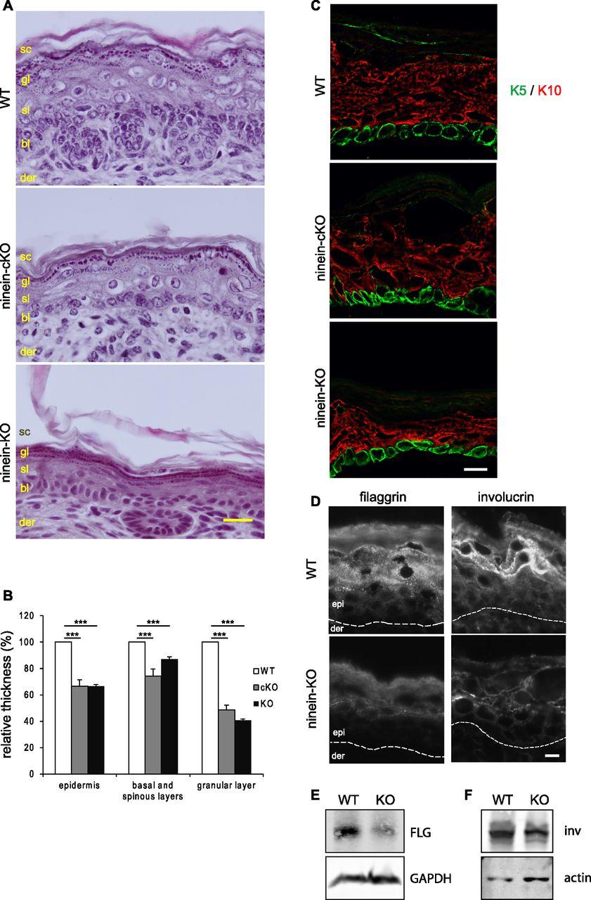 Epidermal development requires ninein for spindle