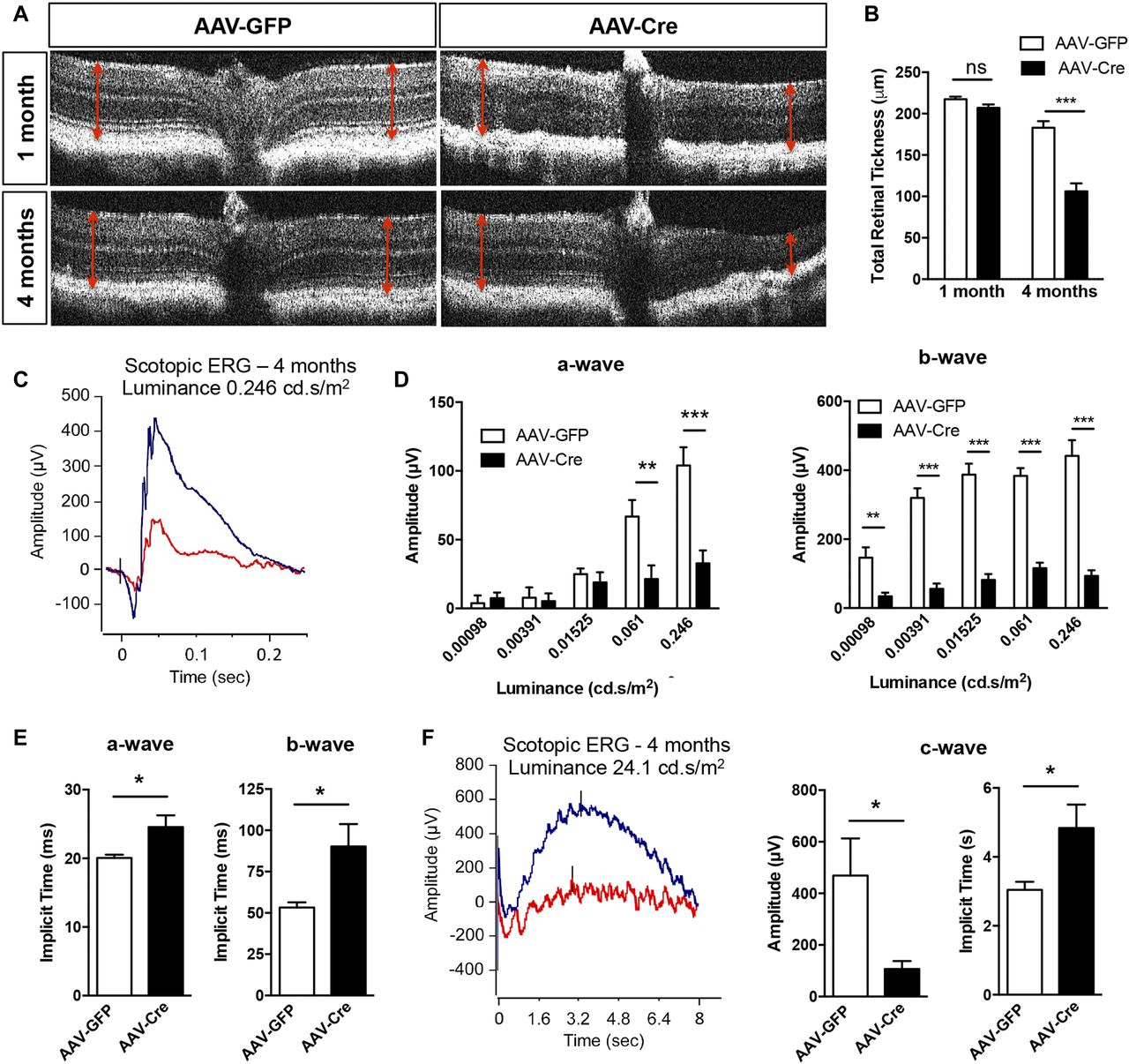 Loss of PGC-1α in RPE induces mesenchymal transition and promotes