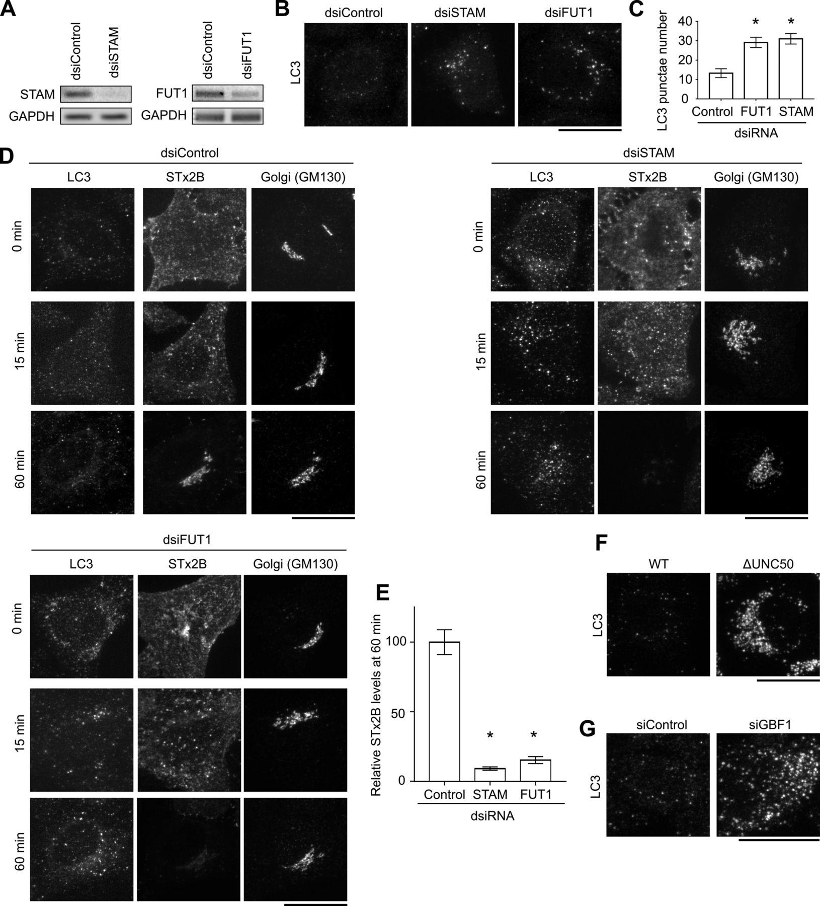 Tamoxifen blocks retrograde trafficking of Shiga toxin 1 and