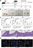 Gut microbiota–derived short-chain fatty acids protect against the progression of endometriosis