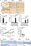 Keratinocyte interleukin-36 receptor expression orchestrates psoriasiform inflammation in mice