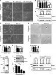 Enhanced carbonyl stress induces irreversible multimerization of CRMP2 in schizophrenia pathogenesis
